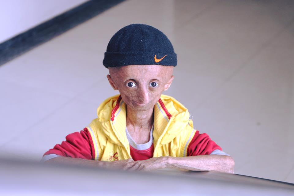 India S Face Of Progeria 15 Year Old Nihal Bitla Is No