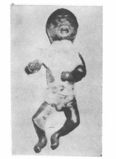 Nagpur baby not the first Harlequin child in India ...